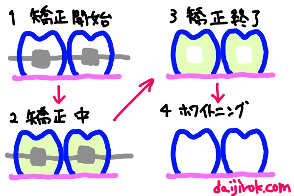 20160616j_image